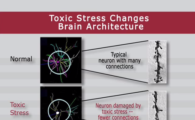Stress And Your Childs Brain >> Toxic Stress