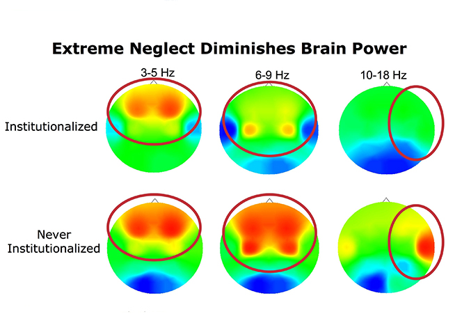 the brains activity can be measured in electrical impulseshere hot colors